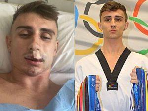 Jack Woolley fez o relato do hospital, revelando que vai precisar de cirurgia plástica para reparar o seu lábio.